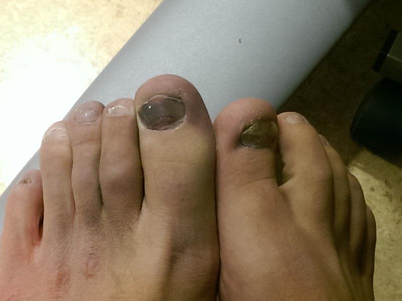 Trasiga fötter